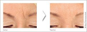 Voher/Nachher Bild der Zornesfalte mit Botox