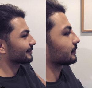 Nasenkorrektur mit Hyaluronsäure