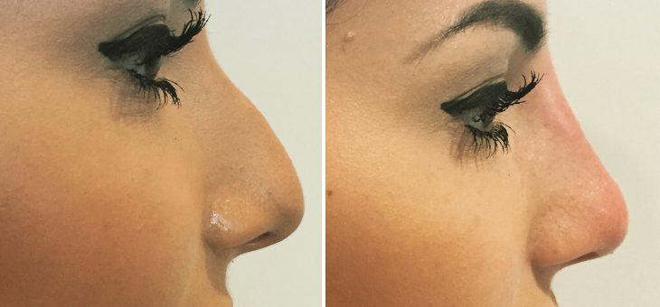Bilder einer Nasenkorrektur ohne OP
