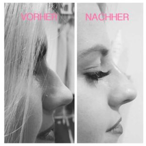 Vorher/Nachher Bild