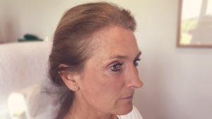 Faltenbehadlung mit Botox