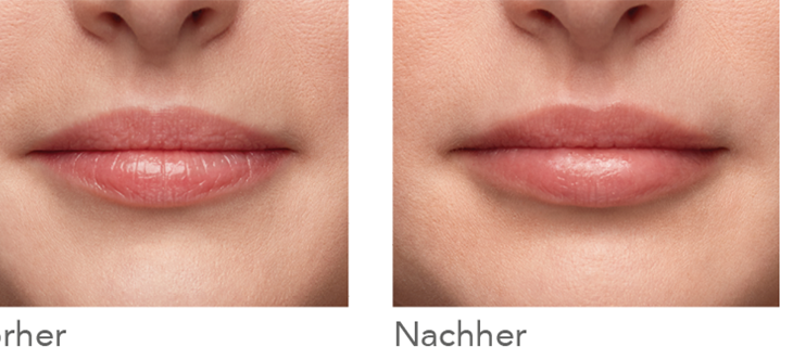 Neuer Filler Belotero® Lips