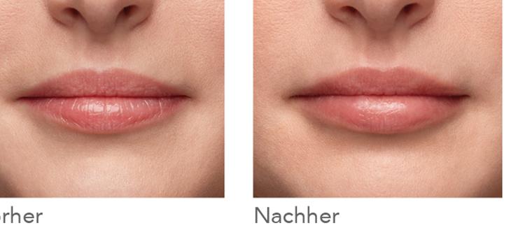 Neuer Filler Belotero® Lips