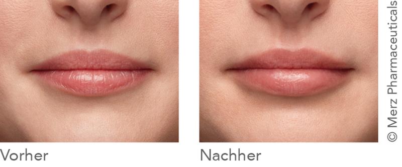 Vergleich Vor und Nach der Behandlung mit einem Hyaluronfiller