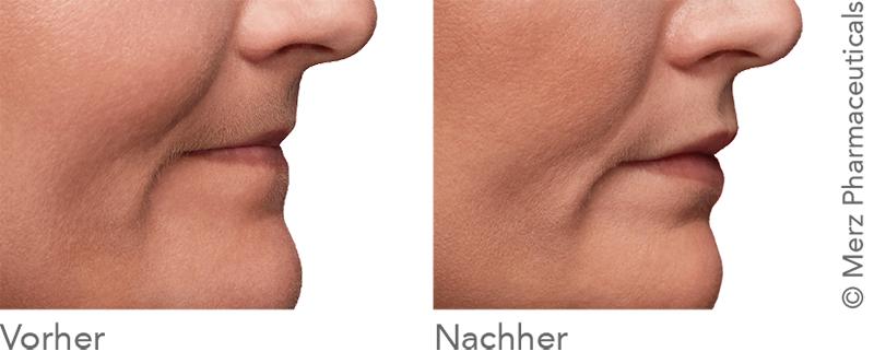 Behandlung der Lippen für mehr Volumen und Kontur