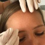 Behandlung der Stirn mit Botox