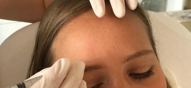 Stirnfalten behandeln in Gießen